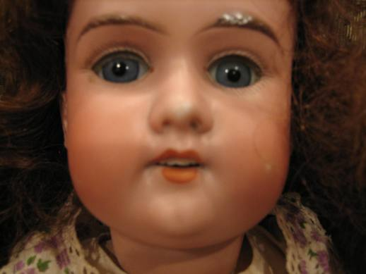 German bisque doll with tooth repaired.